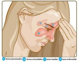 dolor sinusual
