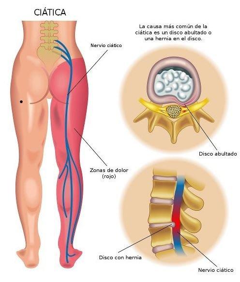 Como desinflamar el nervio ciatico con Remedios caseros❓¡Comprobado!