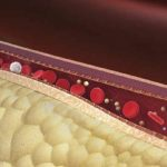 Los 5 mejores Remedios caseros para Bajar el Colesterol rápidamente