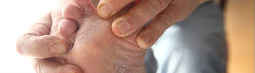 pies con hongos y sabila