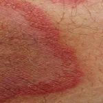 Tiña inguinal: Círculo rojo con granitos en la entrepierna y remedios naturales
