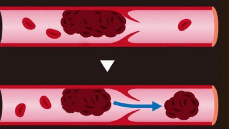 como detectar coagulos en las venas