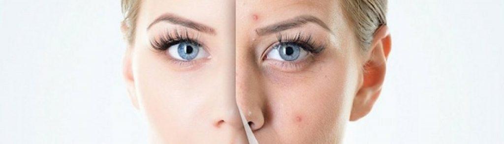 remedios caseros para eliminar manchas de acne