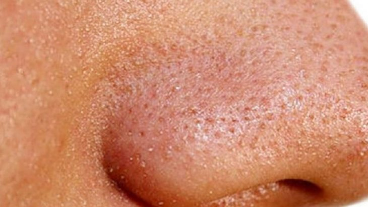 poros en la nariz