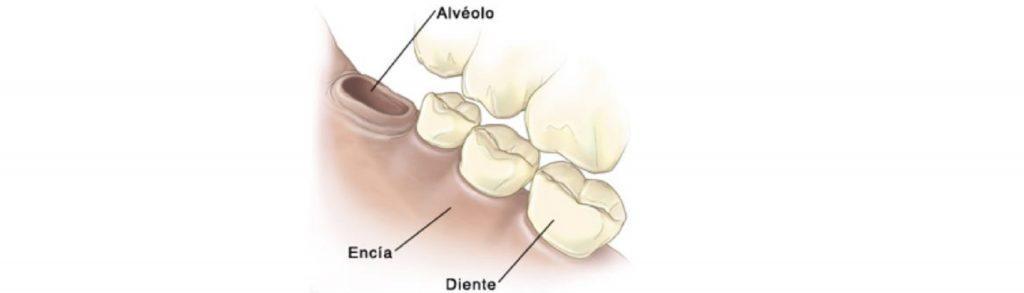 como curar la alveolitis con tratamientos