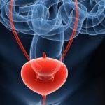 5 Remedios caseros para el Cáncer de Vejiga