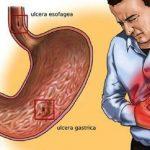Conoce como calmar el dolor de gastritis rápido con tratamientos naturales