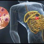 5 formas de aliviar la Gastroenteritis viral en 3 minutos