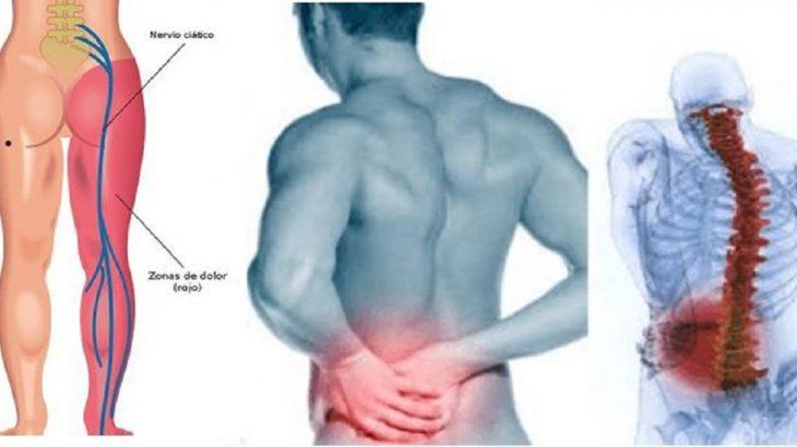 inflamacion del nervio ciatico