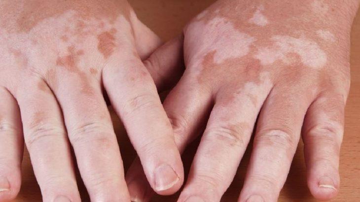 jugos para curar el vitiligo