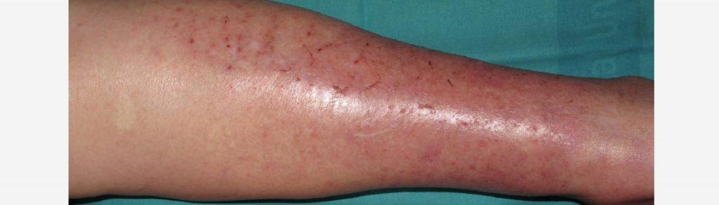 Dermatitis en piernas tratamiento